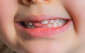 Baby Teeth Myths—Busted!